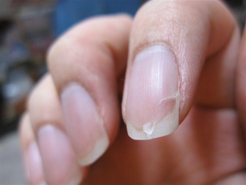 NAVER まとめ病気&栄養不足の警告!?爪で分かるあなたの健康状態&管理方法